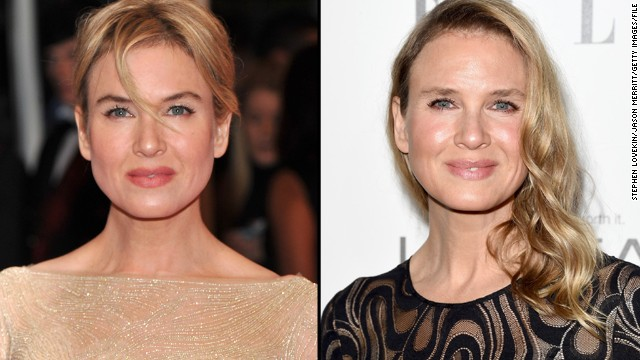 renee zellweger eyes